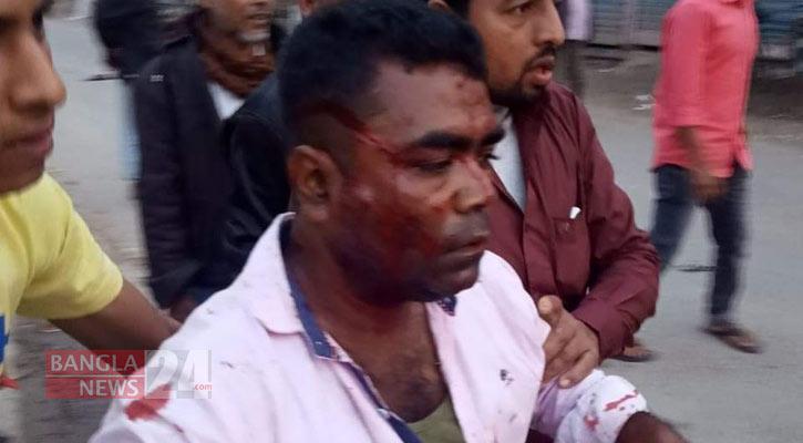 কাদের মির্জা-বাদল গ্রুপের সংঘর্ষে গুলিবিদ্ধসহ আহত ৩০